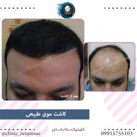 نمونه کار کاشت مو ستاره ساعی 1