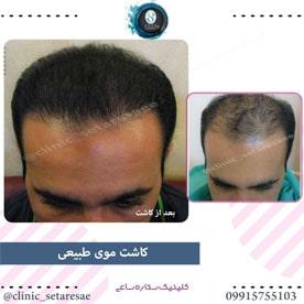 نمونه کار کاشت مو ستاره ساعی 2