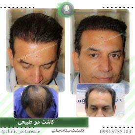 نمونه کار کاشت مو ستاره ساعی 3
