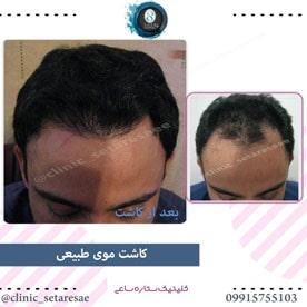نمونه کار کاشت مو ستاره ساعی 4