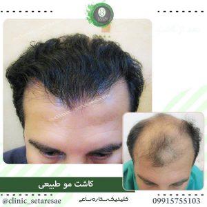 نمونه کار کاشت مو ستاره ساعی 11