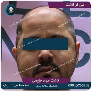 نمونه کار کاشت مو ستاره ساعی 5