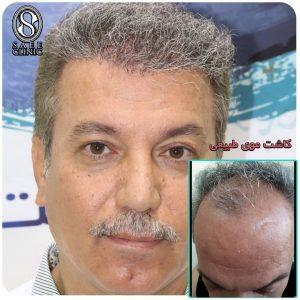 نمونه کار کاشت مو ستاره ساعی 10