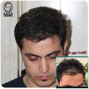 نمونه کار کاشت مو ستاره ساعی 9