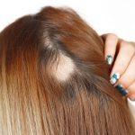 ریزش موی سکه ای یا آلوپسی