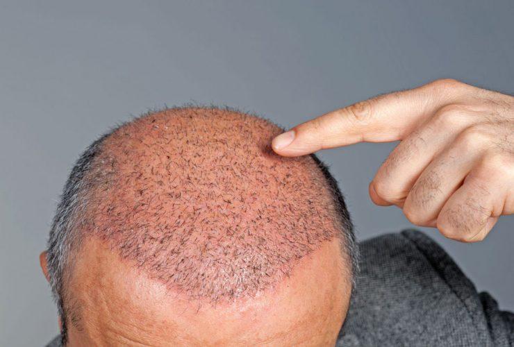 روش کاشت مو به صورت FUE و FUT